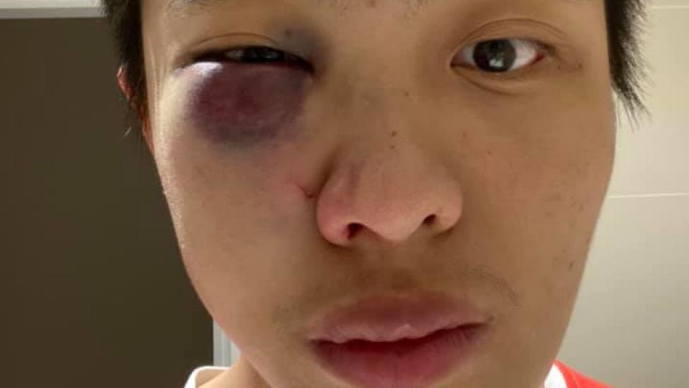 Un joven asiático sufre un ataque racista en Londres por el coronavirus