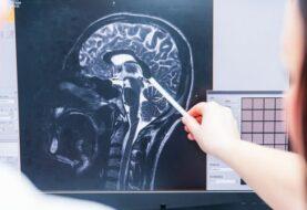 Diabetes e hipertensión elevan riesgo complicaciones en cerebro por covid-19